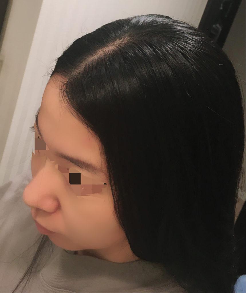 レプロナイザーの効果を検証する写真