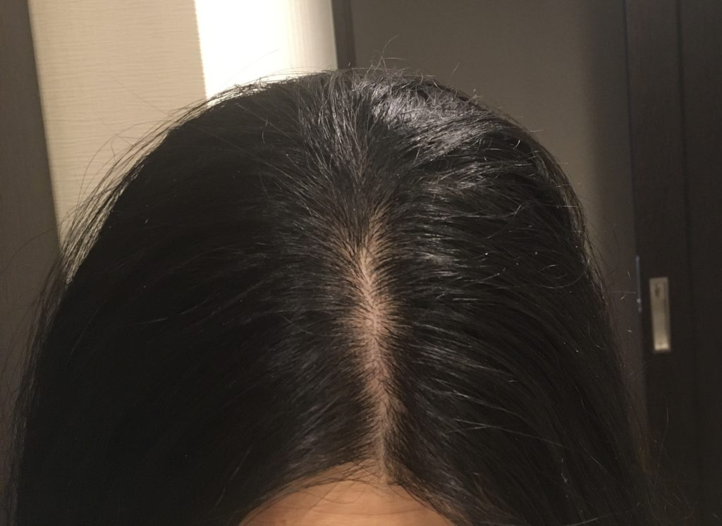 ホリスティックキュアドライヤーRp.(レシピ)の切れ毛効果を示すための写真