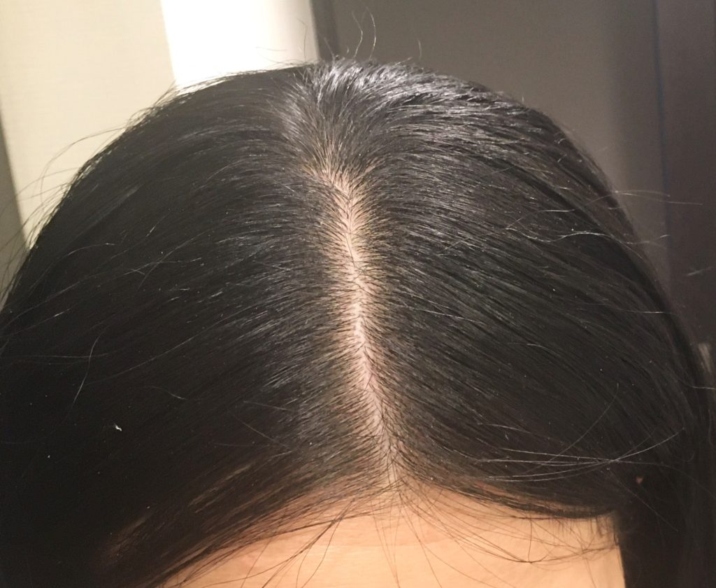 ホリスティックキュアドライヤーRp.(レシピ)のアホ毛効果を表す写真