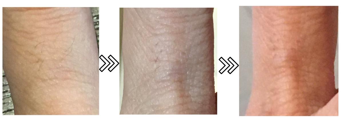 ドクターエルミスゼロの産毛への効果がわかる写真