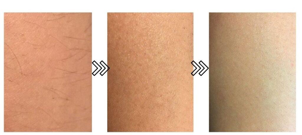 オーパスビューティー03の産毛の脱毛効果を表す写真