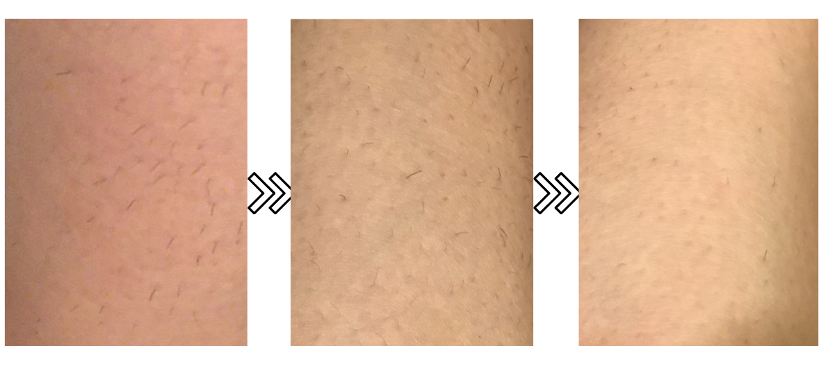 ドクターエルミスゼロの剛毛への脱毛効果がわかる写真