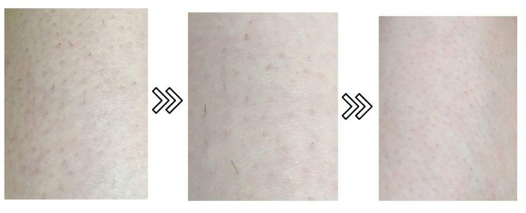 ブラウンのシルクエキスパートPro5の剛毛への脱毛効果の写真