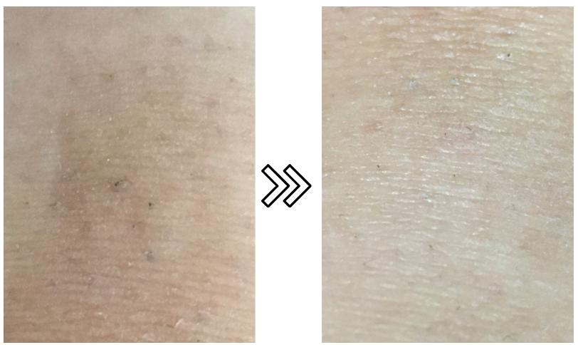 パナソニックの光エステ(脱毛器)の剛毛への脱毛効果を示す写真