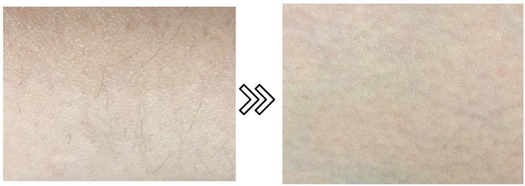 パナソニックの光エステ(脱毛器)の産毛の脱毛効果の写真