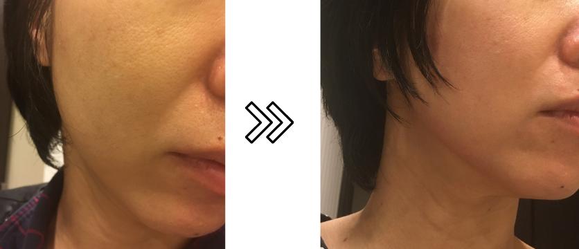 パナソニックRF美顔器のほうれい線への効果写真