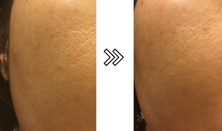 パナソニックRF美顔器の肌のきめへの効果を説明する写真
