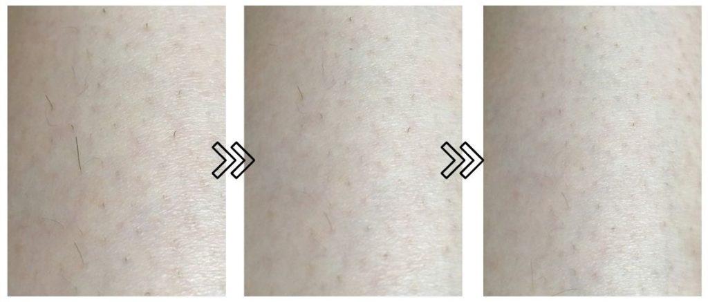 CosbeautyのJoy Version EXの剛毛への脱毛効果の写真