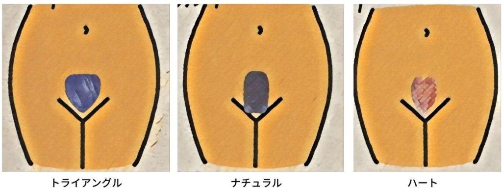 Vゾーンの理想の形を表した図