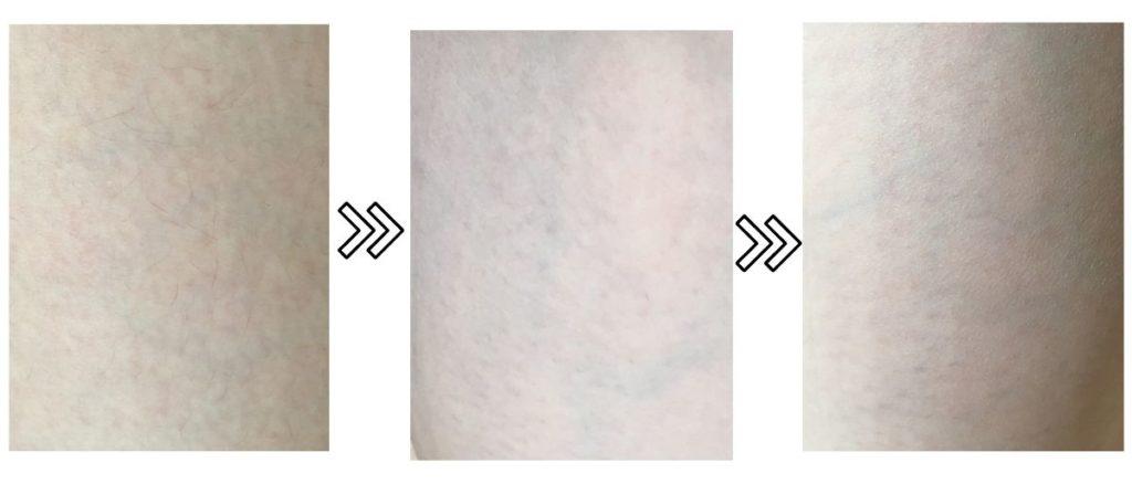 ブラウンのシルクエキスパートPro5の薄毛への脱毛効果の写真