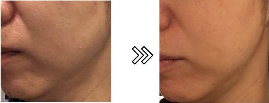 エステナードリフティへのほうれい線への効果を表す写真