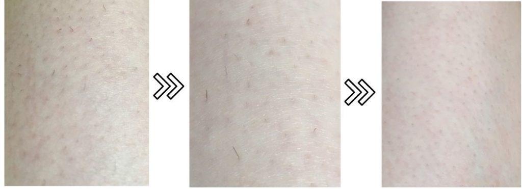 トリアとブラウン・ケノンの剛毛への効果を比較するための写真