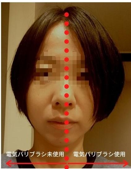 デンキバリブラシの薄毛への効果を表す写真