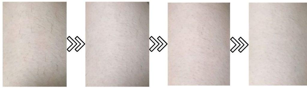 ケノンの剛毛への脱毛効果を表わす写真