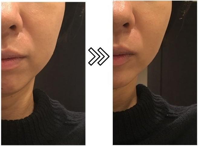 ヤーマンのスカルプリフトのリフトアップ効果の写真