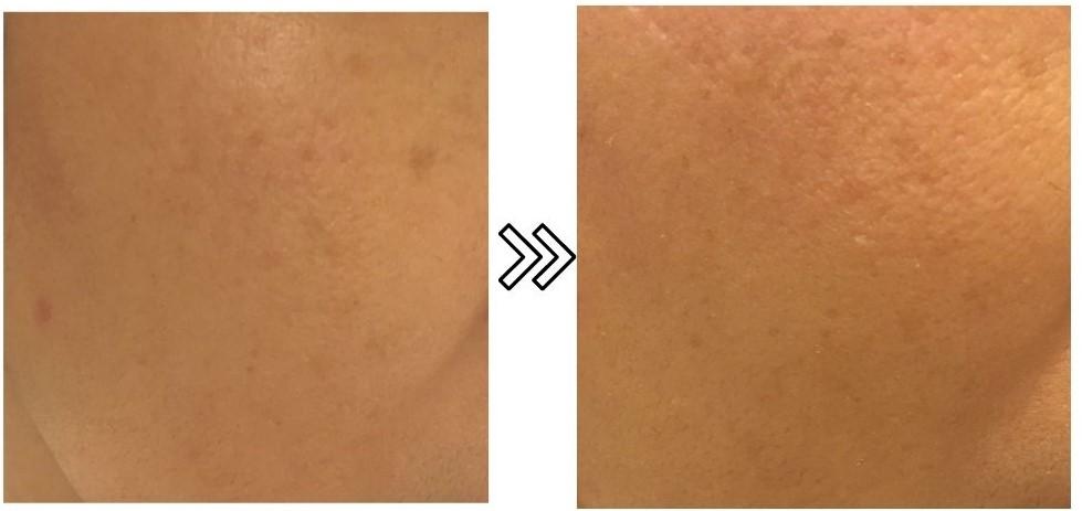 家庭用エステ脱毛器LAVIEの美肌効果の写真