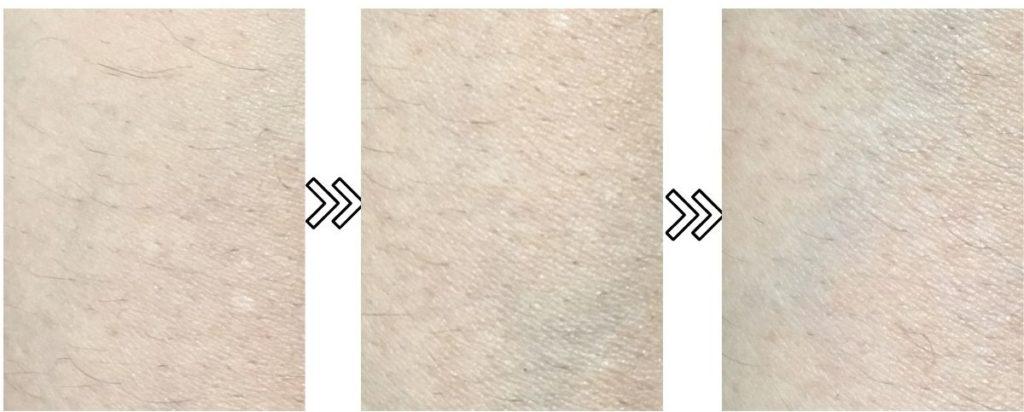 トリアのパーソナルレーザー脱毛器4Xの産毛への脱毛効果の写真