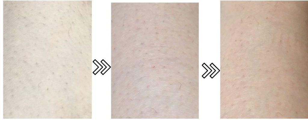 トリアのパーソナルレーザー脱毛器4Xの剛毛への脱毛効果の写真