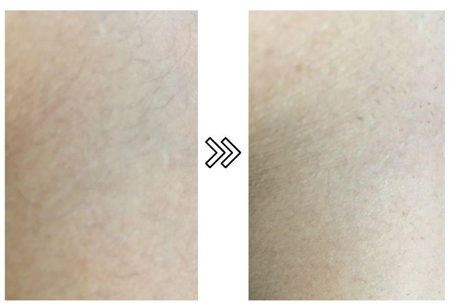 SARLISIの薄毛への効果の写真