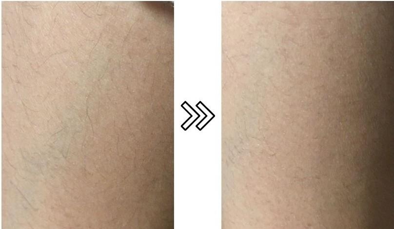 脱毛ラボホームエディションの産毛への効果を説明する写真