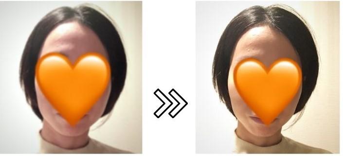 リファビューテックレイズのリフトアップ効果の写真