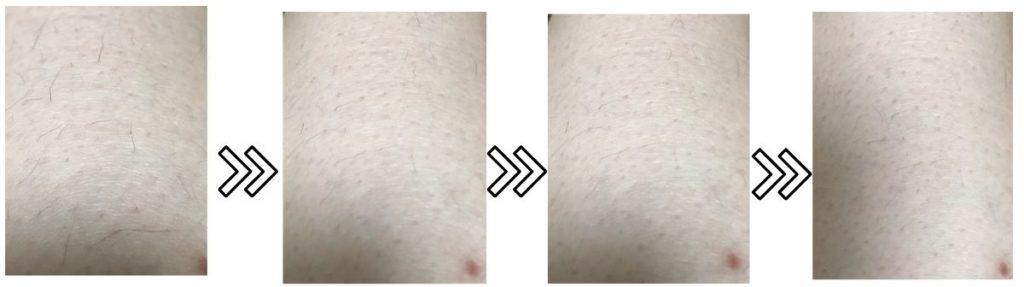 脱毛ラボホームエディションの剛毛の脱毛効果を説明するための写真