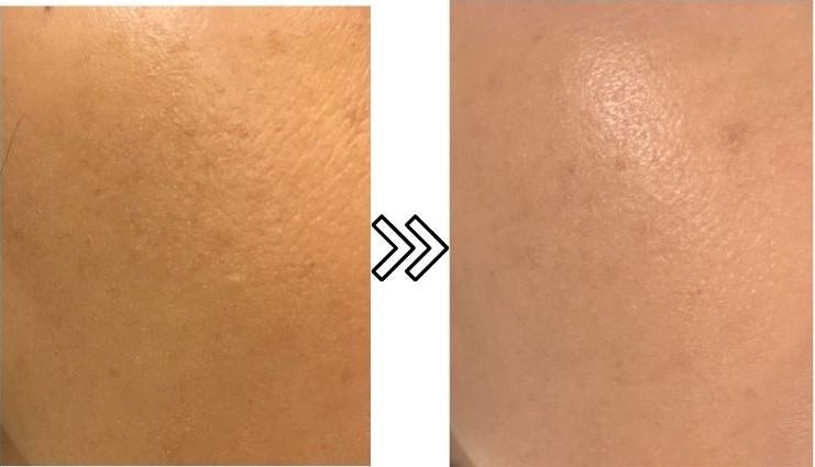 脱毛ラボホームエディションの美肌効果の経過を示す写真