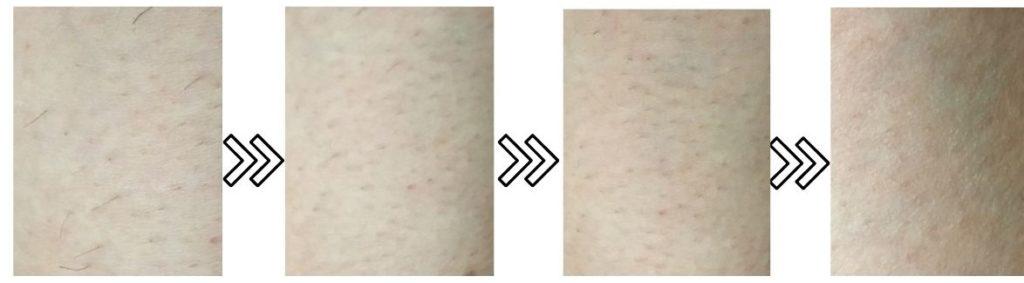 スムーズスキンピュアの剛毛への脱毛効果を表す写真