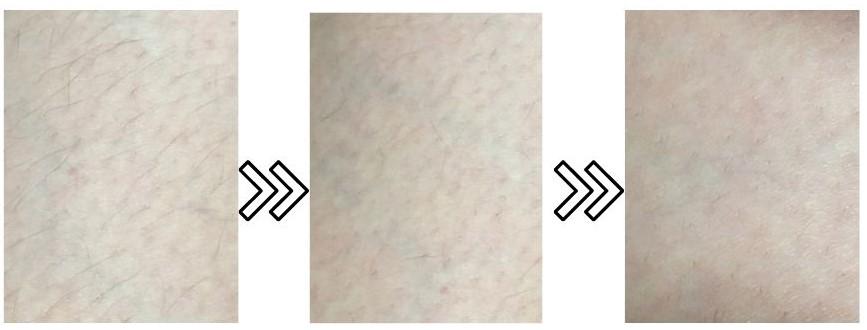 スムーズスキンピュアの太腿の産毛への脱毛効果