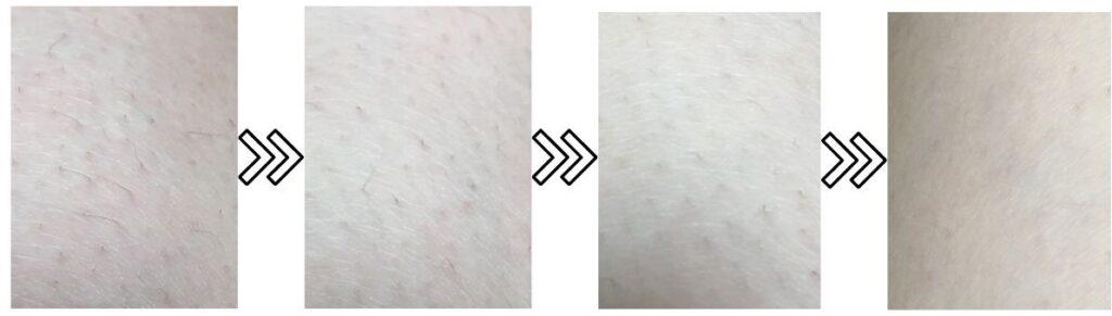 ヤーマン脱毛器レイボーテフラッシュRの産毛の脱毛効果