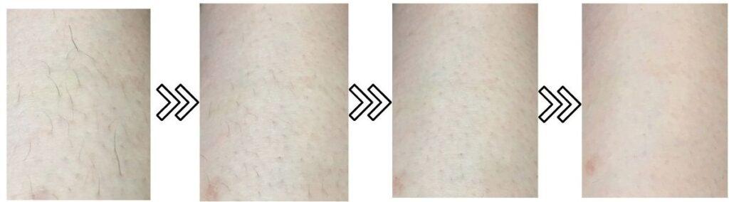 ヤーマン脱毛器レディーボーテRの剛毛の脱毛効果の写真