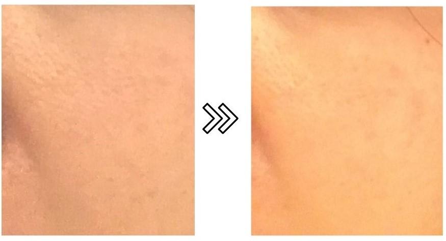 ヤーマン脱毛器レイボーテRの美肌美顔効果の写真
