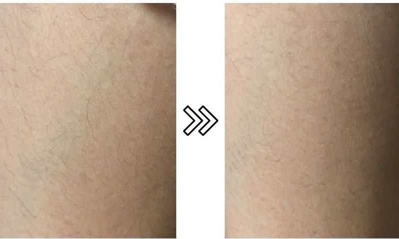 ノヘアバイササラの産毛の脱毛効果を説明するための写真