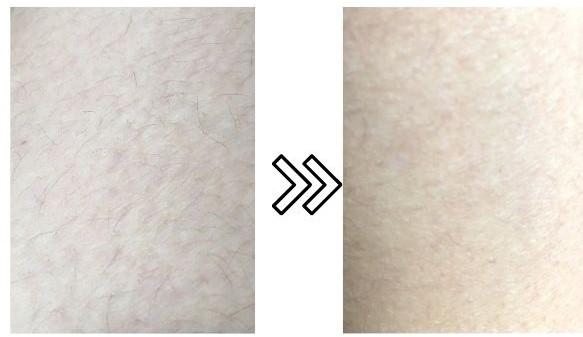 エピレタのうぶ毛の脱毛効果の写真