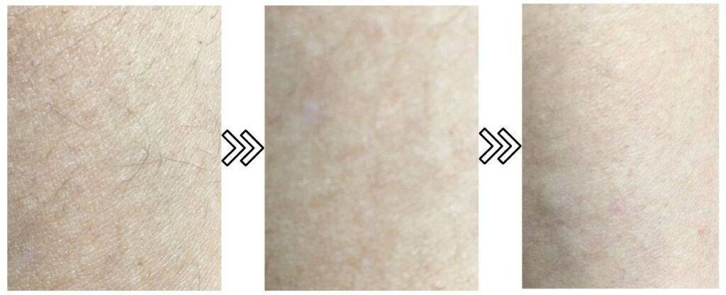 アイスレディ産毛への脱毛効果