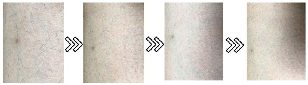 アイスレディ脱毛器の剛毛への効果