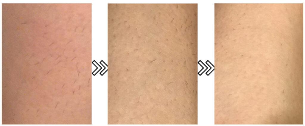 オーパスビューティー03の剛毛への脱毛効果のビフォーアフター写真