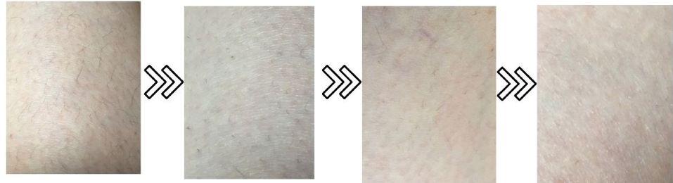 1万円台の脱毛器エピレタの脱毛効果を表す写真
