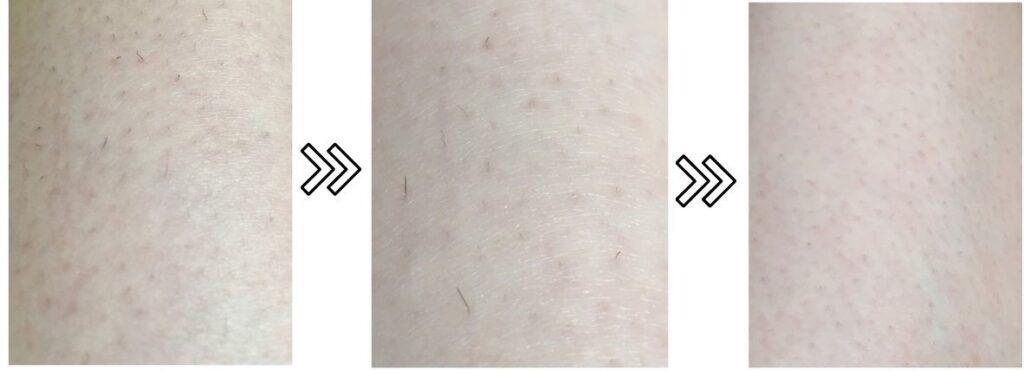 ブラウンのシルクエキスパートの剛毛への脱毛効果を表す写真