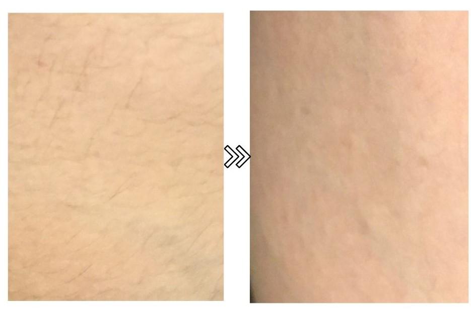 ルメアプレステージ脱毛器の産毛の脱毛効果の写真