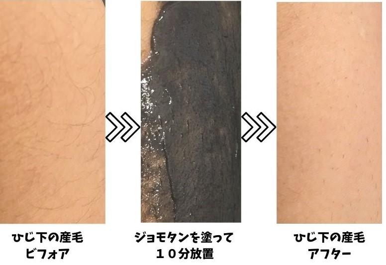 ジョモタンの腕の産毛への脱毛効果を表す写真