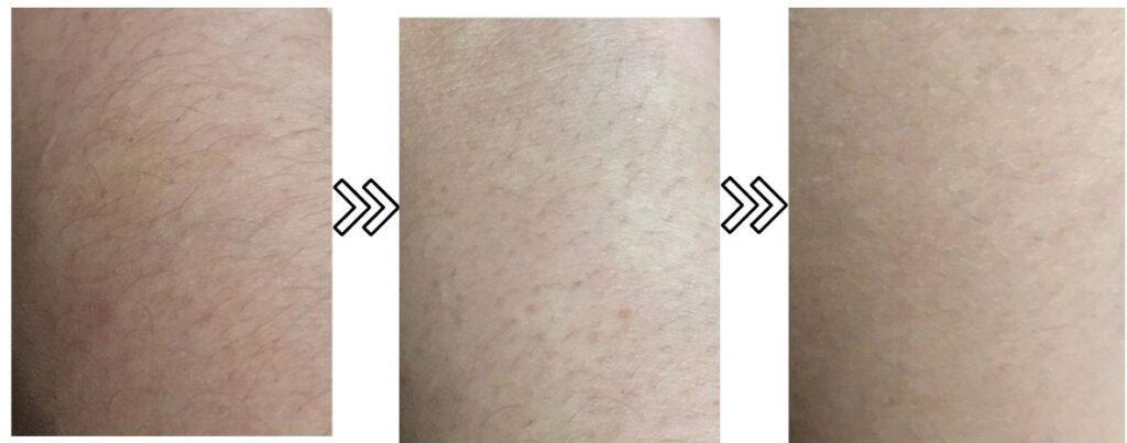 ミュゼ脱毛器の剛毛への脱毛効果がわかる写真