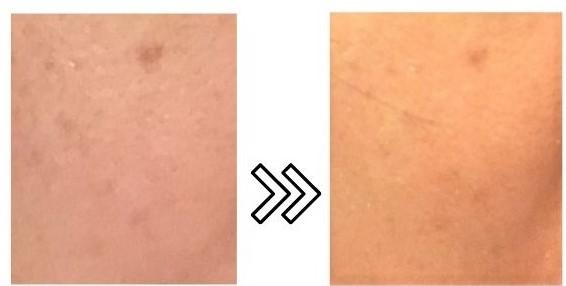 fasiz脱毛器スキンケアモードの効果写真