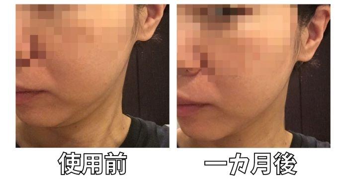 アイスレディ美顔器効のリフトアップ効果の写真