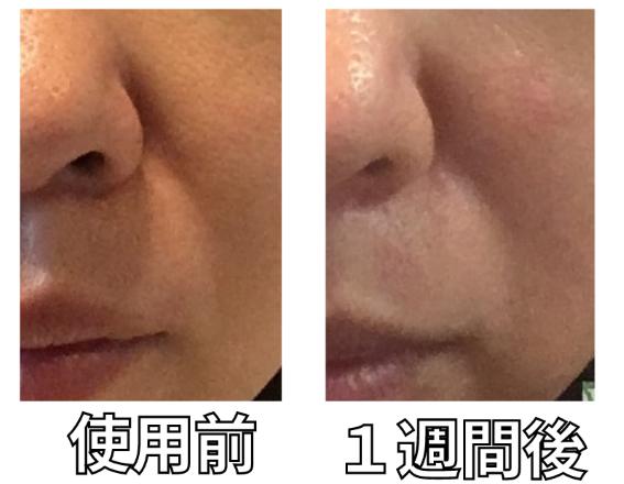 オーパスビューティー04美顔器ほうれい線への効果