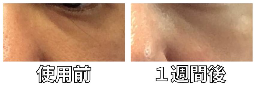 オーパスビューティー04美顔器の目元への効果の写真