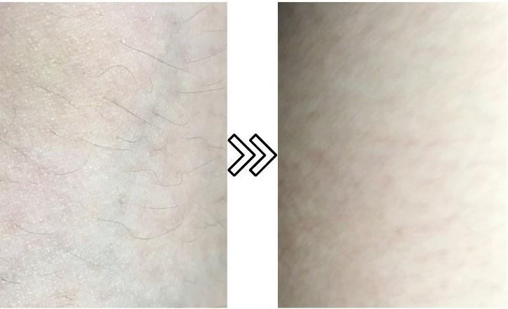 ホームストラッシュ脱毛器の産毛の脱毛効果