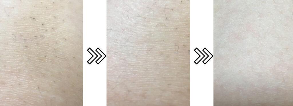 ホームストラッシュの脱毛器の剛毛の脱毛効果